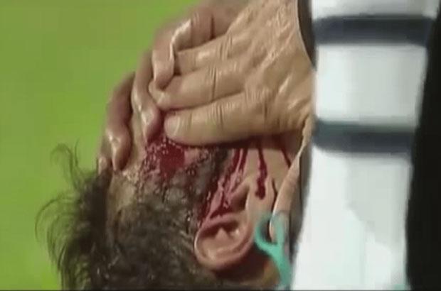 إصابة قوية لمدافع البرتغال ريكاردو كارفاليو